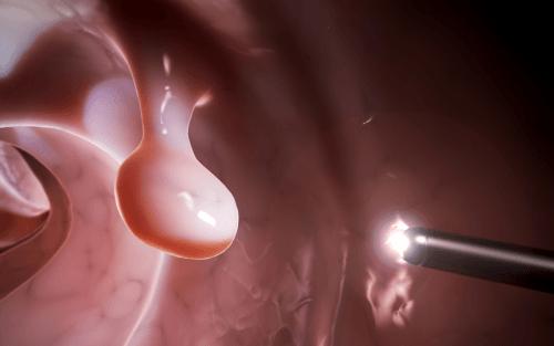 Quá trình phẫu thuật được gây tê, bệnh nhân không có cảm giác đau khó chịu.