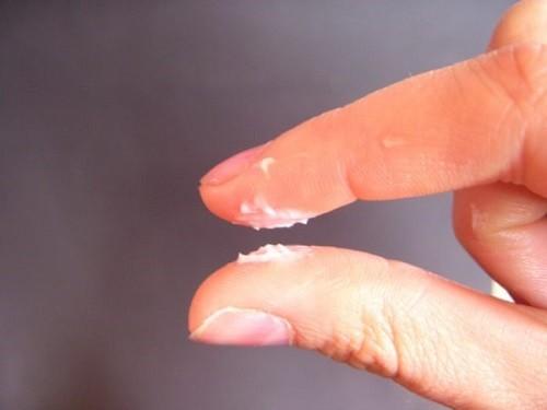 Nguyên nhân gây ra hiện tượng khí hư khô như bột