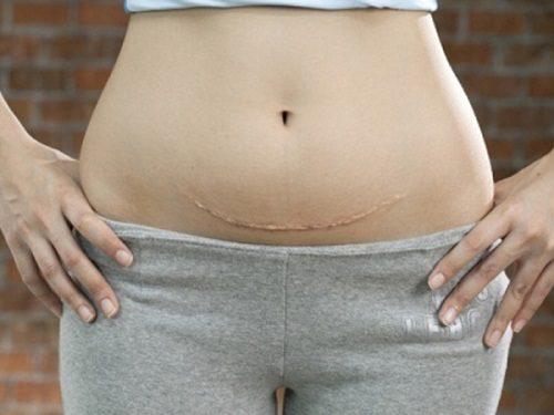 Sinh mổ lần 3 làm tăng nguy cơ nứt vỡ tử cung.
