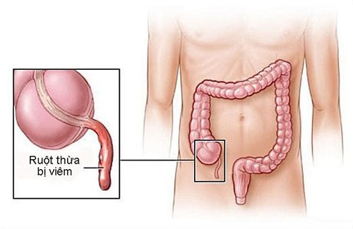 Viêm ruột thừa trong thai kì là trường hợp nguy hiểm cần được xử lý mổ ngay.