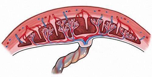 nhau cài răng lược là tình trạng bánh nhau bám chặt bất thường vào lớp cơ tử cung của thai phụ, khá nguy hiểm.