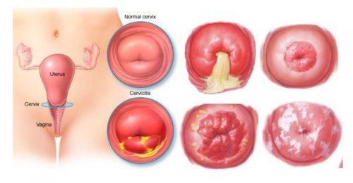 Nguyên nhân gây vô sinh có thể do viêm cổ tử cung ở phụ nữ