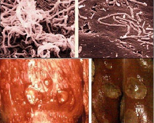 Bệnh hạ cam vùng kín là gì?