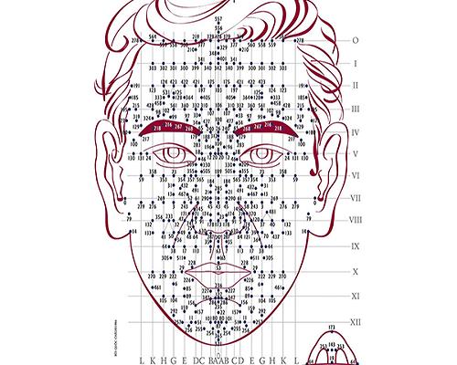 Phác họa sơ đồ chữa u xơ tử cung bằng diện chẩn